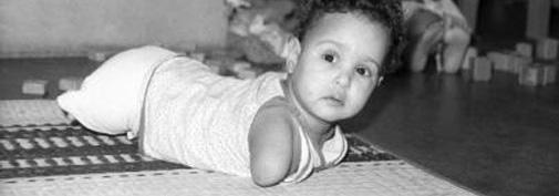 19 साल पहले, हाथ-पैर विहीन लड़की की वो तस्वीर, जिसके प्रकाशन के बाद अमेरिकी पति-पत्नी ने उसे गोद ले लिया.