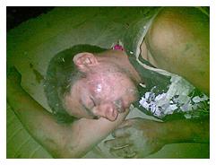 दिल्ली में जख्मी शराबी युवक